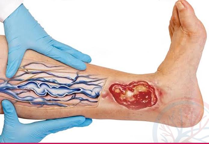 Total Vascular banner conteudo insuficiencia venosa cronica