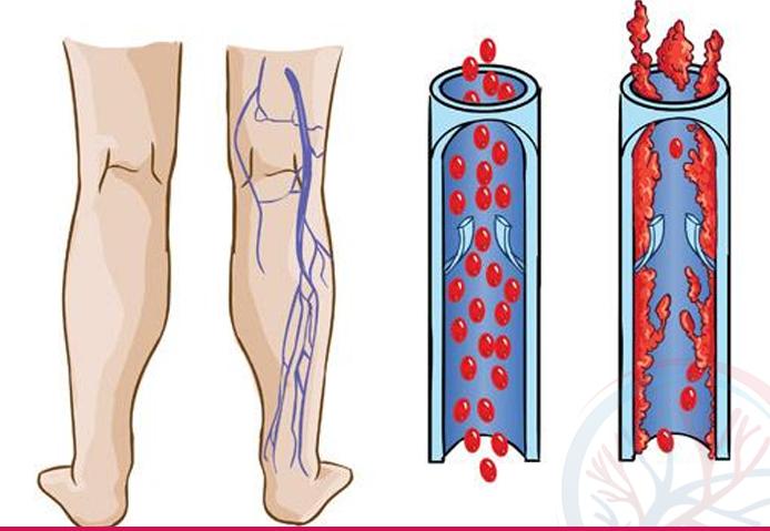 Total Vascular banner tratamentos conteudo feblite