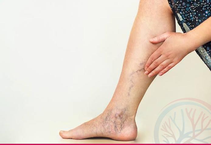 Total Vascular banner tratamentos conteudo microcirurgia varizes
