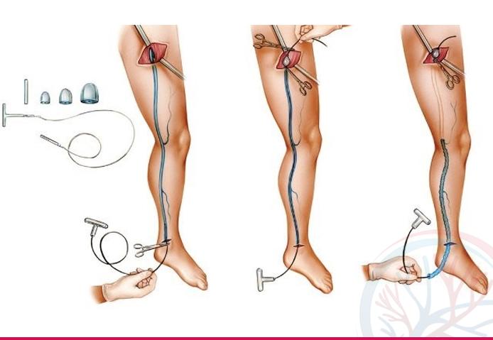 Total Vascular banner tratamentos conteudo safena