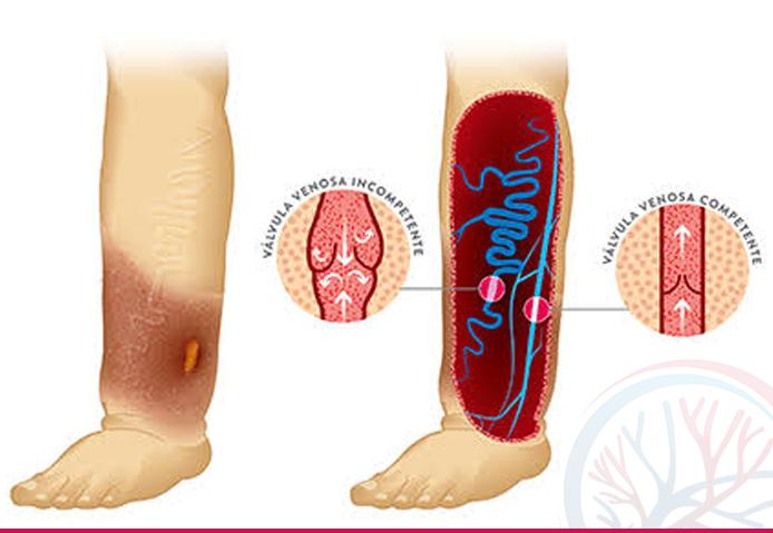 Total Vascular banner tratamentos conteudo ulcera varicosa