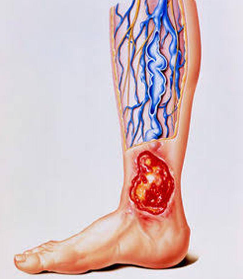Úlcera Varicosa